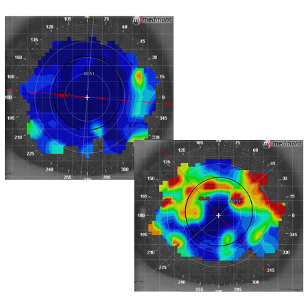 Corneal topography tear maps